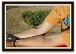 subdermal implants 9